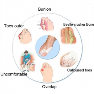 Separator si protectie dublata degetelor - ORTO103